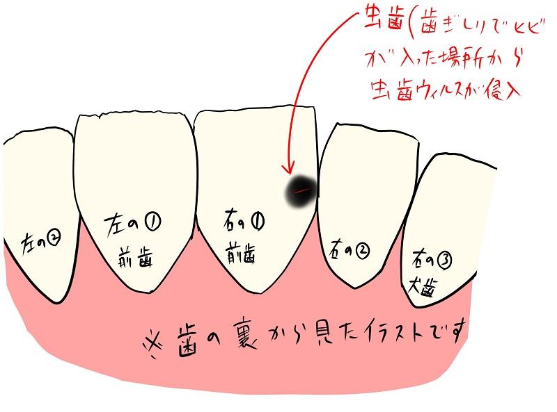 虫歯⑪前歯裏の治療方法について 幸せになろうhspのケンジアライブ